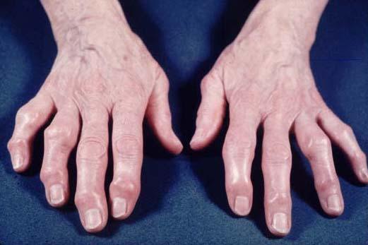 primi sintomi di artrite reumatoide